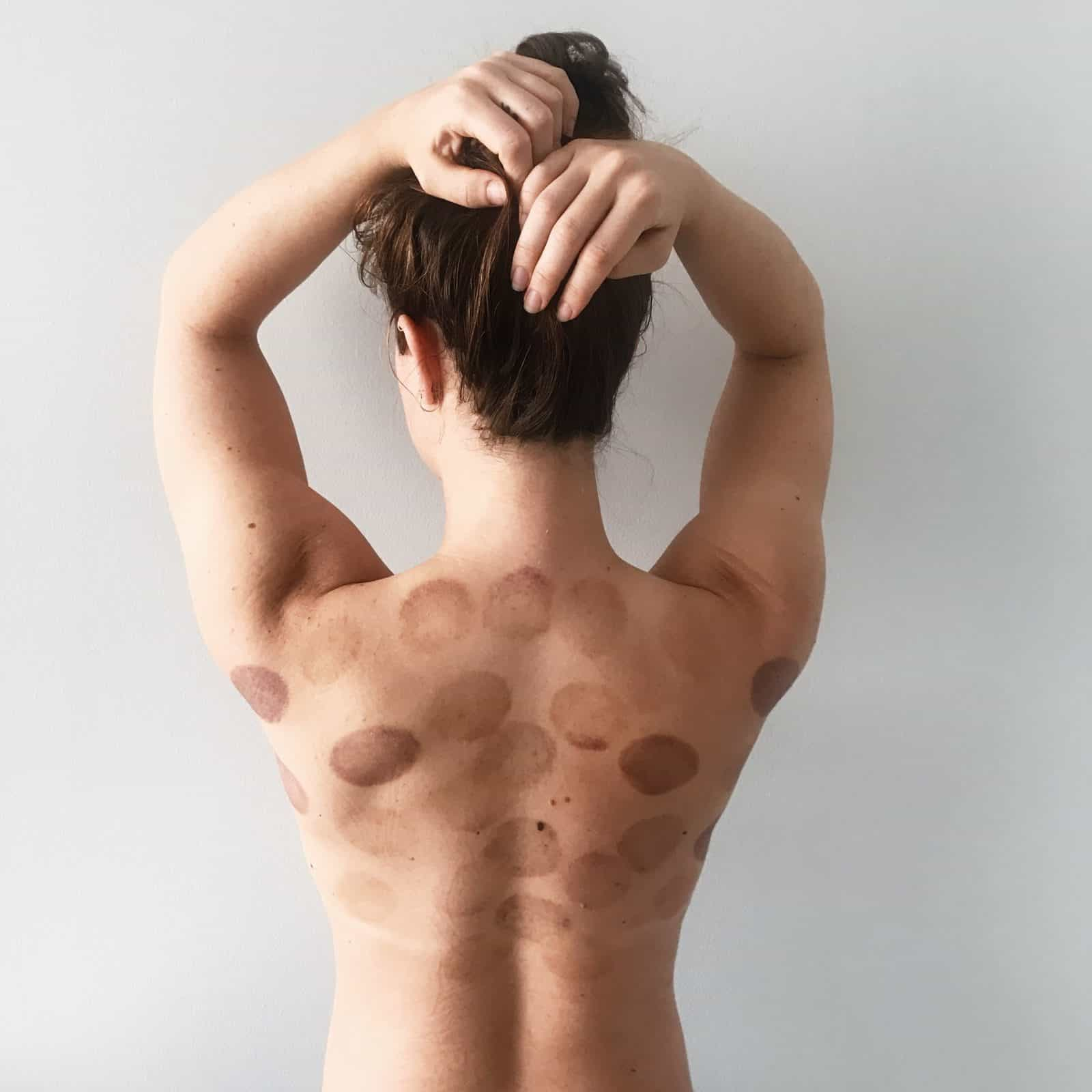 My Cupping Experience